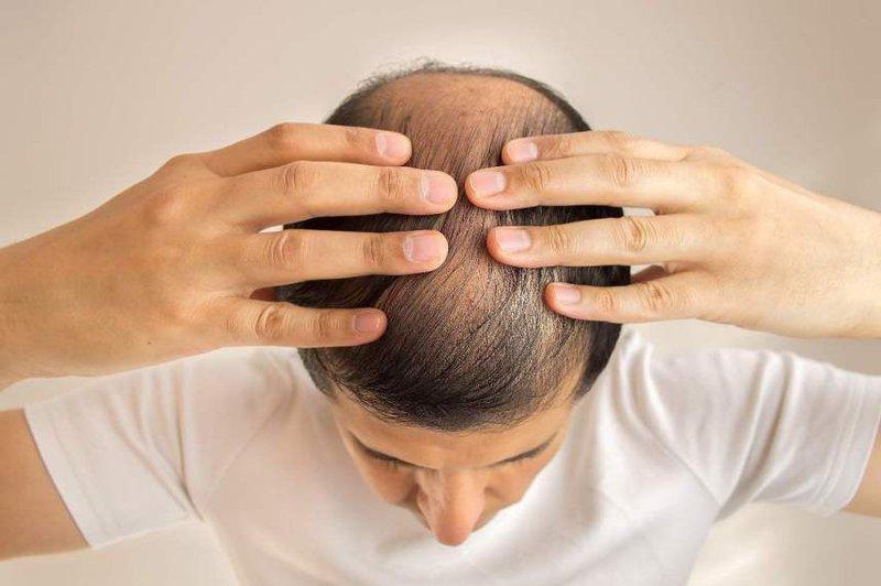 Rụng tóc khi hóa trị