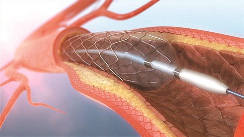 Đặt stent mạch vành