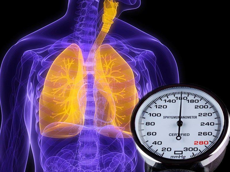 Tiêu chuẩn chẩn đoán tăng áp phổi