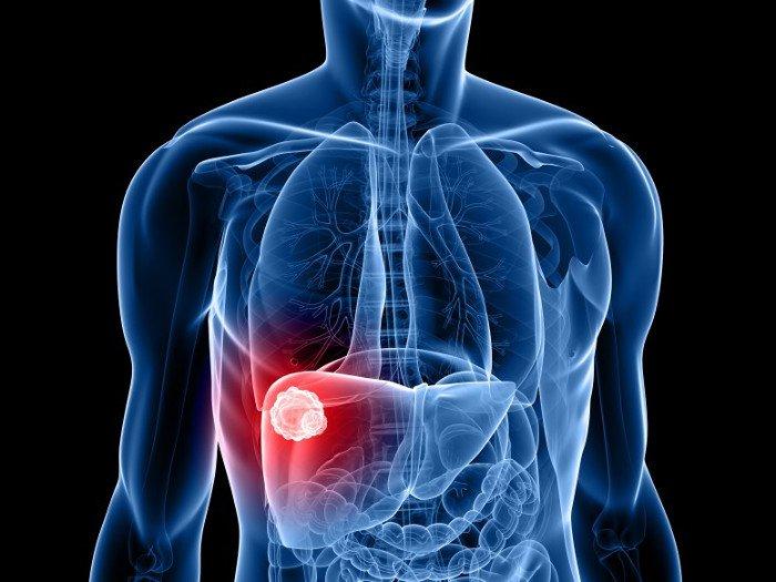 Cách chữa bệnh gan