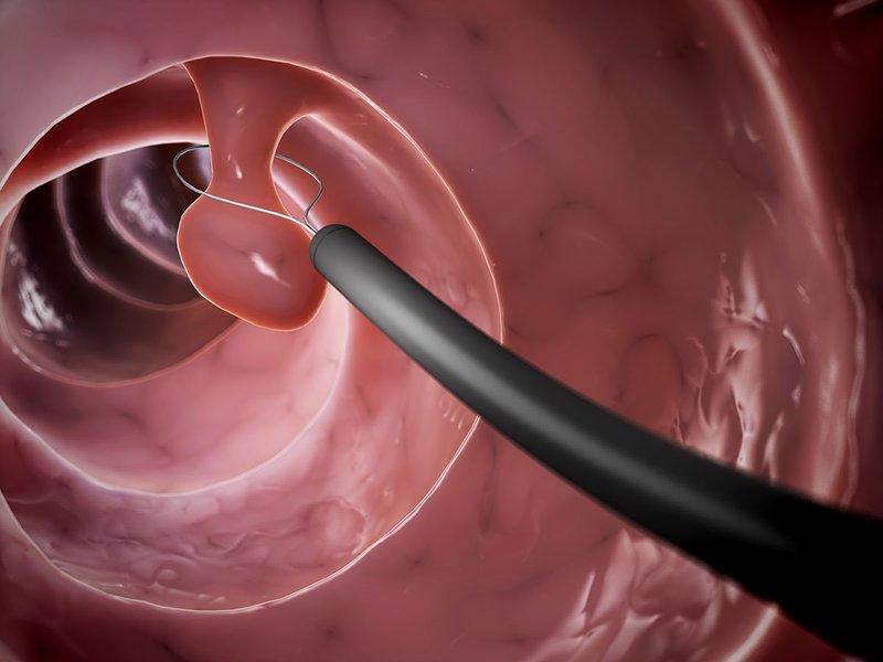 Điều trị polyp đại tràng có chân