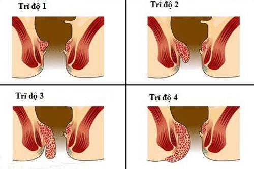 Trĩ nội độ 3 có cần phẫu thuật