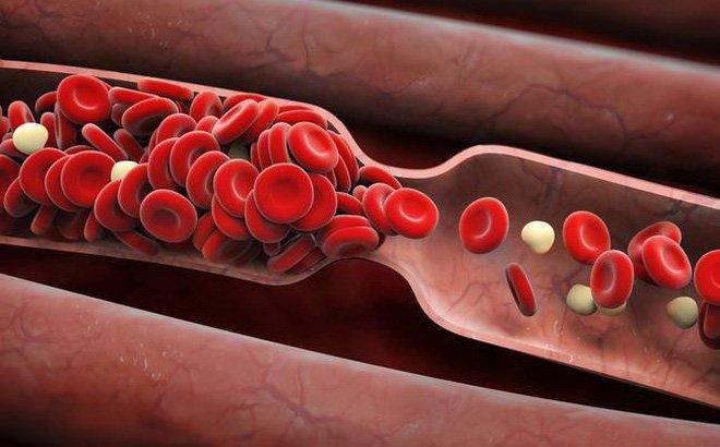 Chỉ định lọc máu trong suy thận cấp
