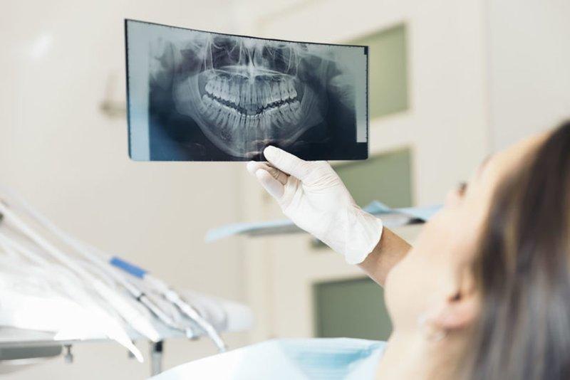 Chụp X quang răng