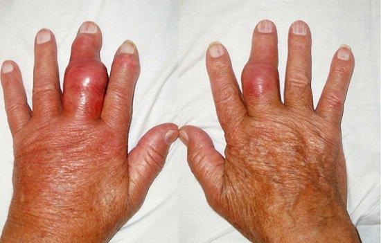 Điều trị và giảm đau viêm đa khớp