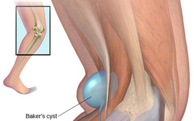 Tìm hiểu bệnh u nang bao hoạt dịch khớp gối