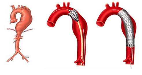 Dấu hiệu cảnh báo phình động mạch chủ ngực
