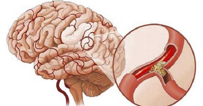 Tai biến mạch máu não nhẹ: Đừng chủ quan
