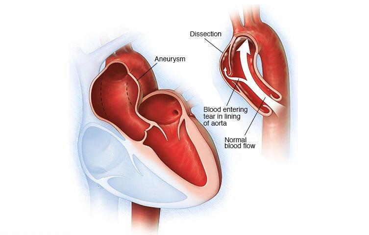 Phình động mạch chủ: Đặt stent graft trong trường hợp nào?