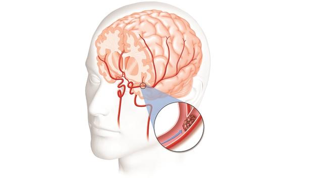 Tai biến mạch máu não tái phát