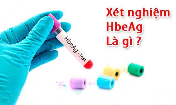 Xét nghiệm Hbeag