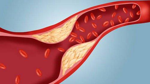 Biến chứng xơ vữa động mạch vành