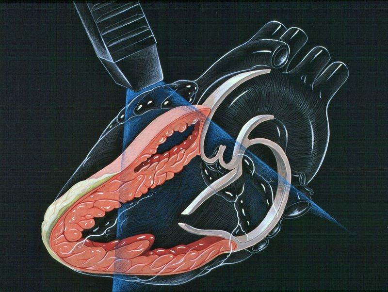 Siêu âm tim mạch qua thành ngực (TTE) | Vinmec