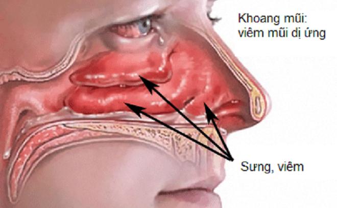 Các bệnh thường gặp ở tai mũi họng