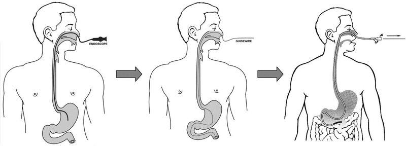 Nội soi dạ dày đường mũi