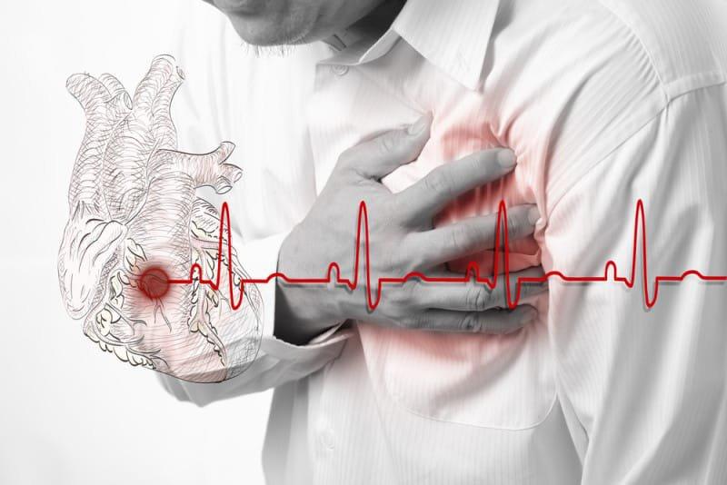 Biến chứng nguy hiểm của xơ vữa động mạch vành