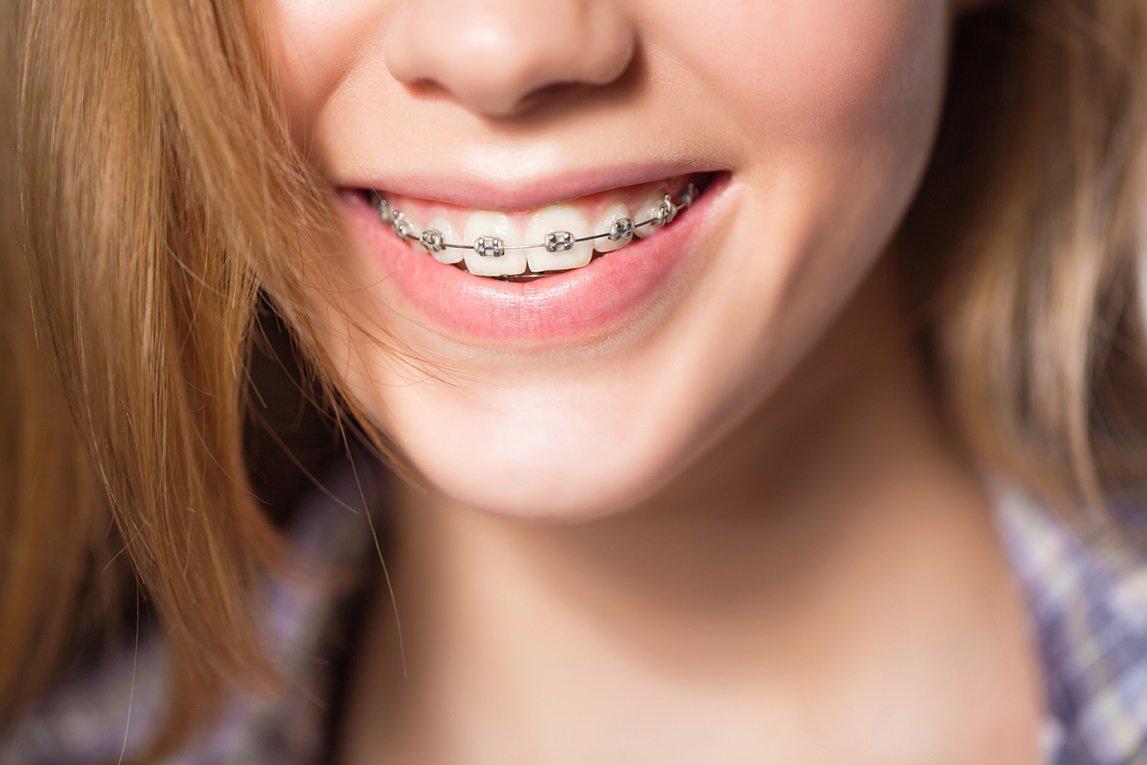 Nắm được thời gian phù hợp sẽ khiến quá trình niềng răng đạt kết quả tốt nhất.