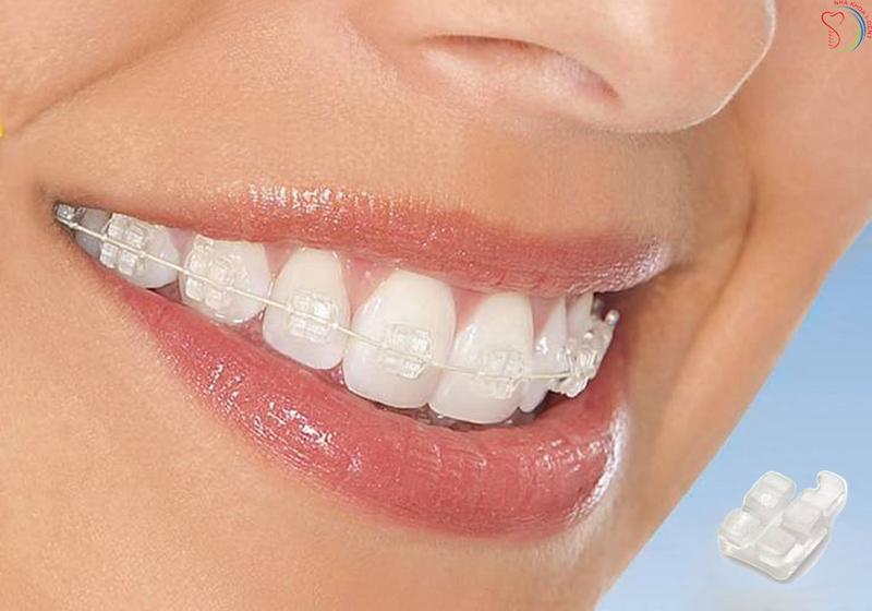 Niềng răng bằng mắc cài trong suốt