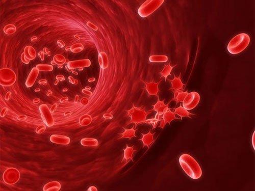 Ung thư máu có chữa được không