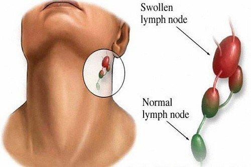 Chẩn đoán u hạch bạch huyết bằng siêu âm