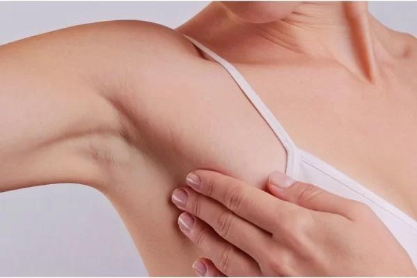 Nổi u hạch ở nách: Cảnh giác ung thư vú