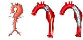 Phình động mạch chủ bụng