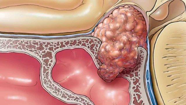 Bệnh u tuyến yên là gì?