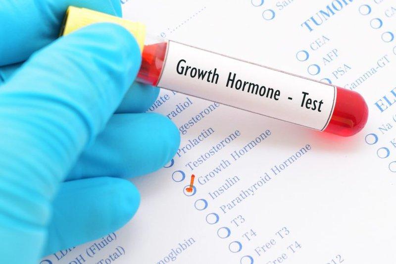 Vai trò của xét nghiệm hormone tăng trưởng (GH)