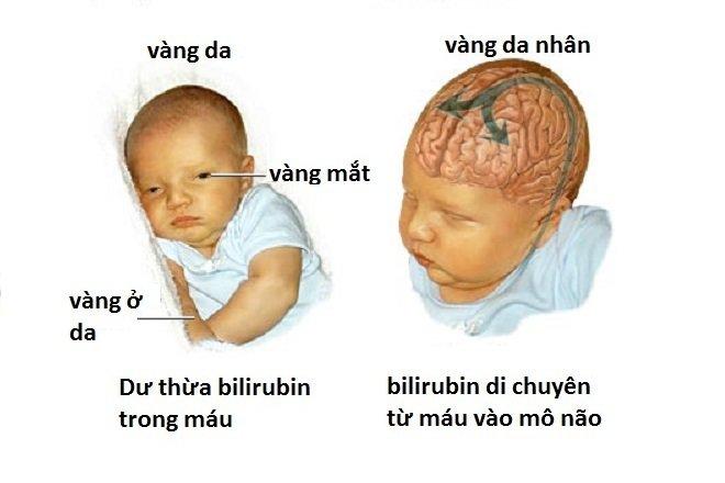 Vàng da nhân não là gì?