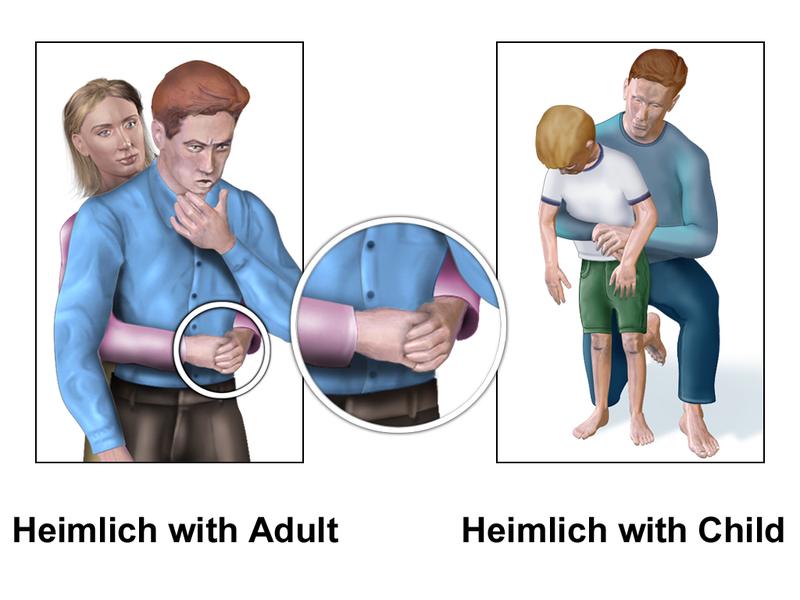 Heimlich là gì