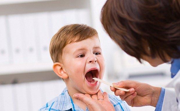 Trẻ bị viêm họng nên đi khám bác sĩ