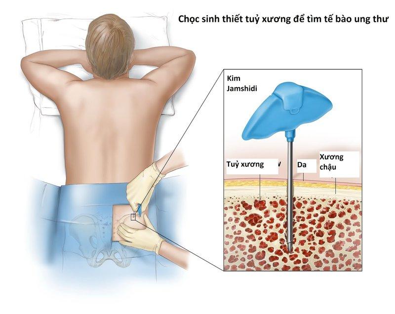 Sinh thiết tuỷ xương