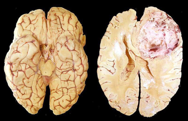 U nguyên bào thần kinh đệm