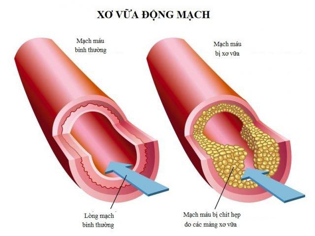Xơ vữa động mạch chi dưới