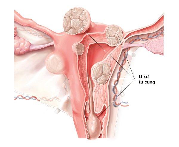 Phẫu thuật u xơ tử cung