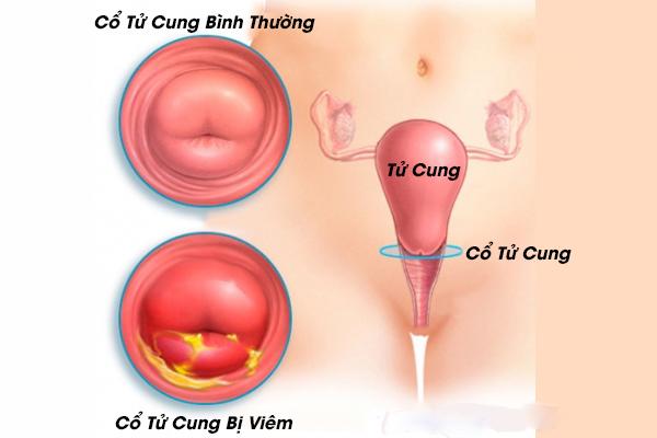 Viêm cổ tử cung: Nguyên nhân và triệu chứng cảnh báo