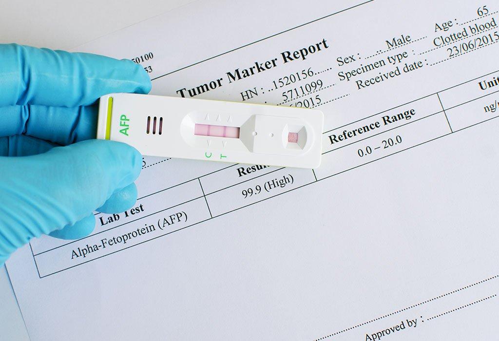 Các chỉ dấu ung thư quan trọng thường được sử dụng hiện nay | Vinmec