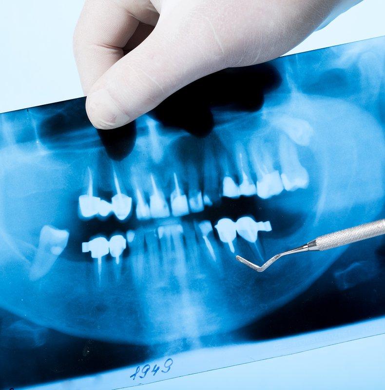 X quang răng