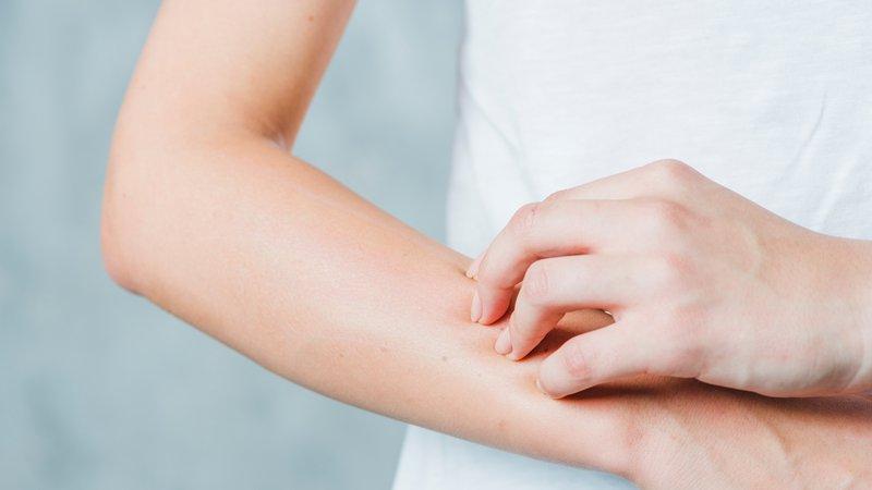 Điều trị viêm mao mạch dị ứng, tránh biến chứng