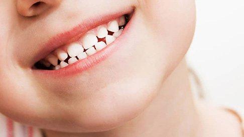 Nhổ răng sữa còn chân