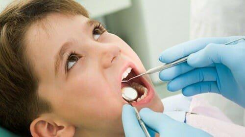 Nhổ răng sữa cho bé
