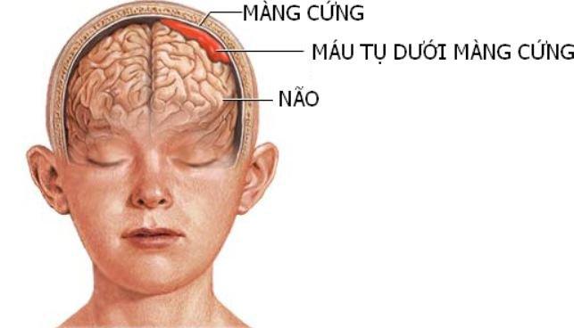 Triệu chứng của tụ máu não