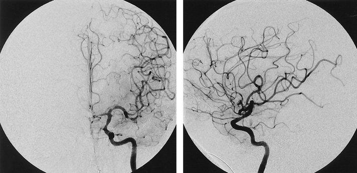 chụp mạch máu số hóa xóa nền (Digital Subtraction Angiography - DSA)