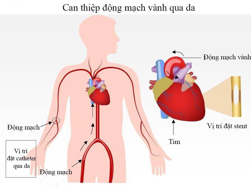 Can thiệp động mạch vành qua da