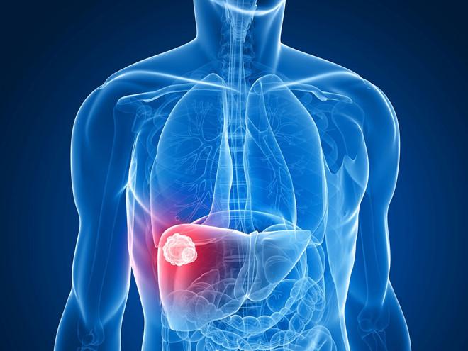 Nút mạch điều trị ung thư gan