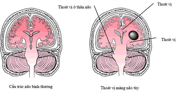 Bệnh thoát vị màng não tủy là gì?