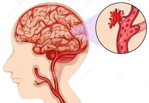 Tìm hiểu chứng đột quỵ xuất huyết não