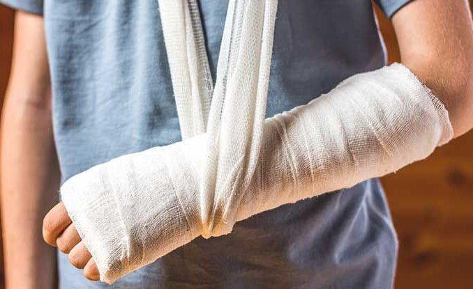 Gãy xương cẳng tay