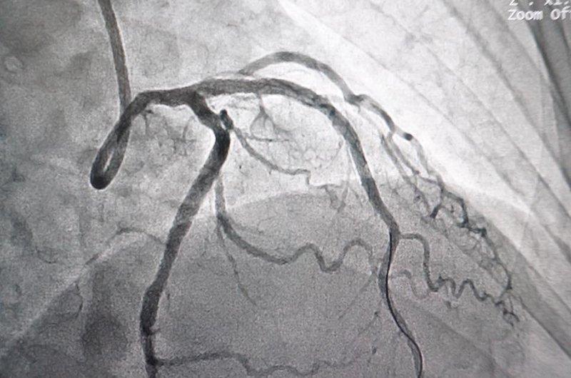 Ứng dụng của chụp mạch số hóa xóa nền (DSA) trong lĩnh vực thần kinh   Vinmec