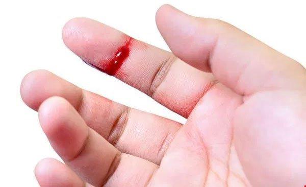 Nguyên nhân máu khó đông